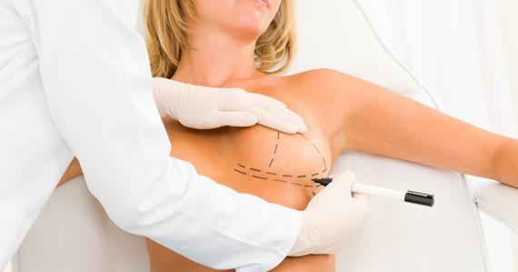 Mamoplastia RJ